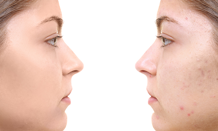before and after of woman with acne