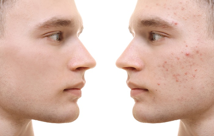 Young man before and after acne treatment on white background.